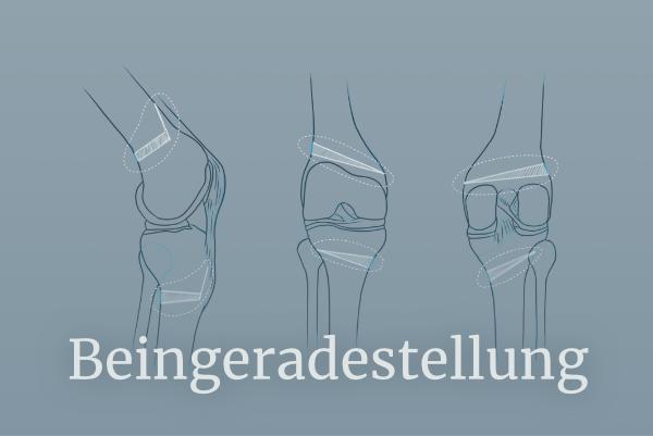 Illustration zu Beingeradestellung - Umstellungsosteotomie - Link führt zu Beingeradestellung
