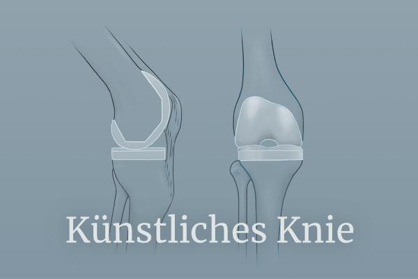 Illustration zu Künstliches Knie - Link führt zu Künstliches Knie